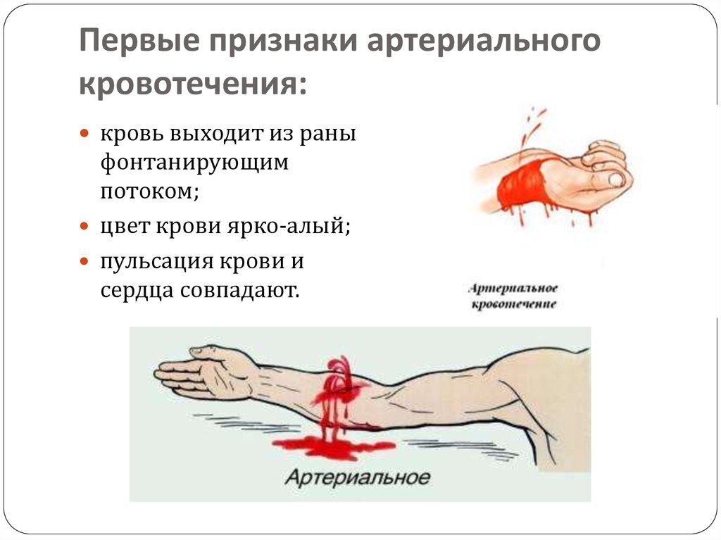 Чем опасно паренхиматозное кровотечение и способы его остановки
