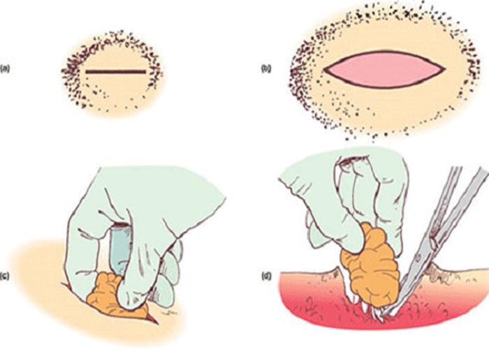 Что такое липома и почему на теле человека возникают новообразования