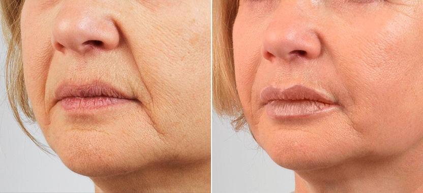 Как убрать брыли на лице: операция, инъекции, косметологические процедуры и упражнения в домашних условиях