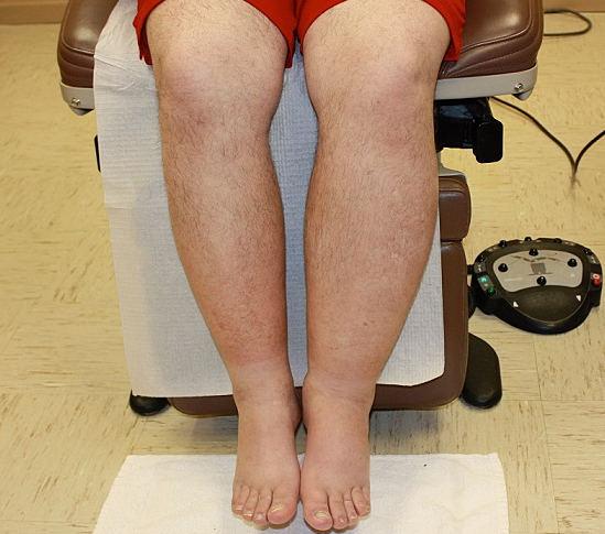 Лимфостаз – причина тяжести в ногах. лечение лимфостаза - заболевания лимфатической системы.