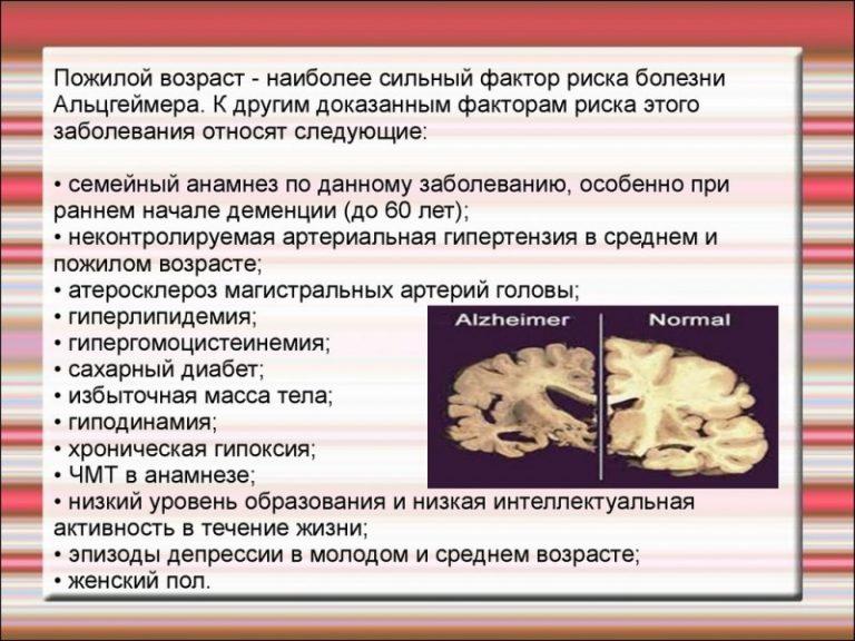 Болезнь альцгеймера: причины, симптомы и лечение в статье невролога полякова т. а.