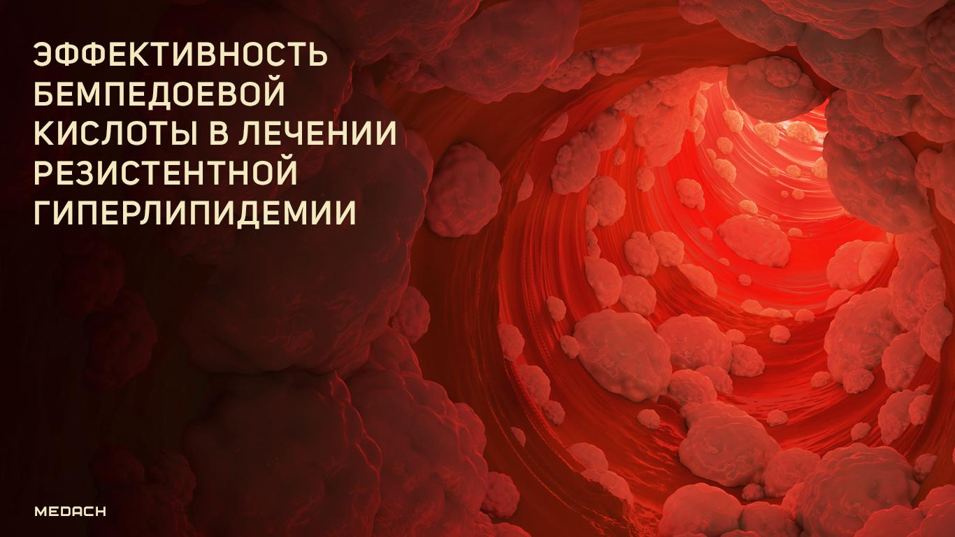 Гиперлипидемия: симптомы, диагностика, лечение. лечение гиперлипидемии смешанная гиперлипидемия - новая медицина
