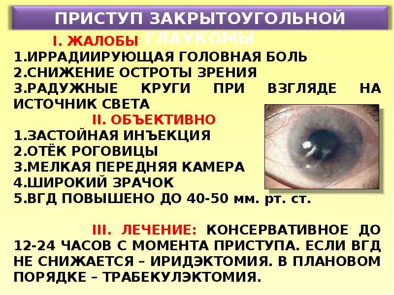 Глазные капли при глаукоме: список препаратов для лечения, капли для собак от глаукомы, виды и противопоказания