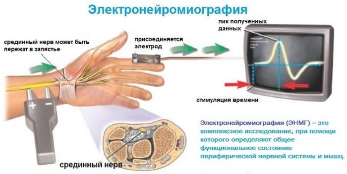 Электронейромиография (энмг). электромиография в москве