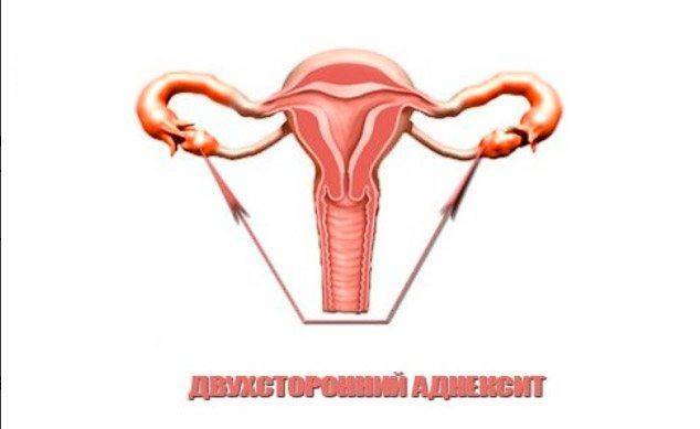 Сальпингит: симптомы и схема лечения у женщин