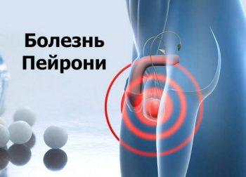 Как убрать внезапный стояк: у спортсменов, в общественном месте