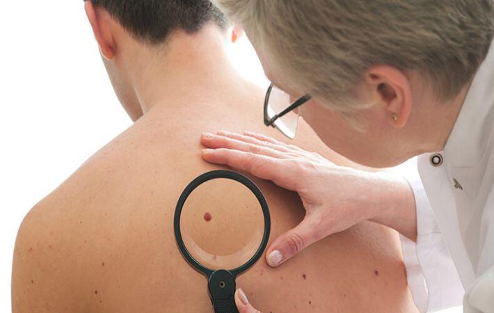 Саркома кости: что это такое, симптомы, признаки