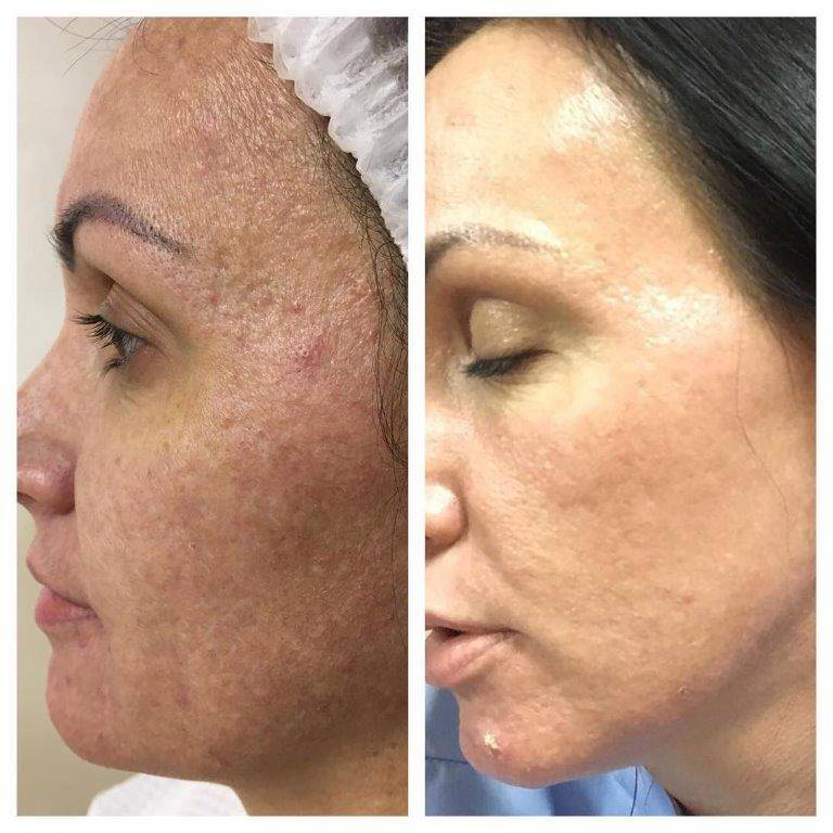 Микронидлинг для кожи лица   пластическая хирургия и косметология