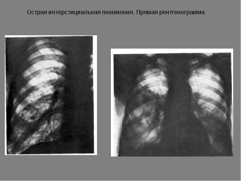 Полисегментарная пневмония: как развивается, признаки и течение, диагностика, лечение, прогноз