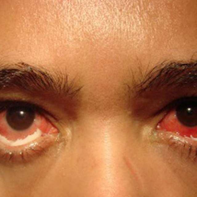 Триппер у мужчин и женщин — признаки, симптомы заболевания. варианты лечения и профилактики
