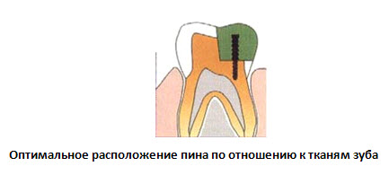 Штифт в зубе — фото и осложнения при установке зубной титановой конструкции