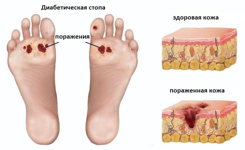 Шипица на ступне: лечение и причины...