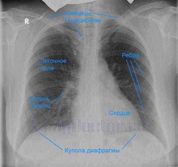 Почему болит в грудине и ком в горле и что это может быть