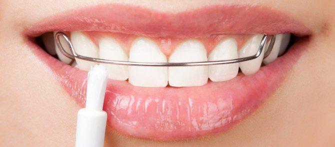 Ретейнеры на зубы: установка, сравнение с капой, отзывы и снятие