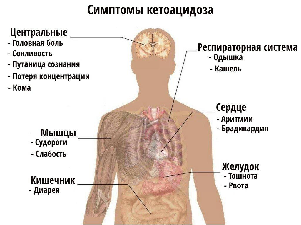 10 признаков кетоацидоза