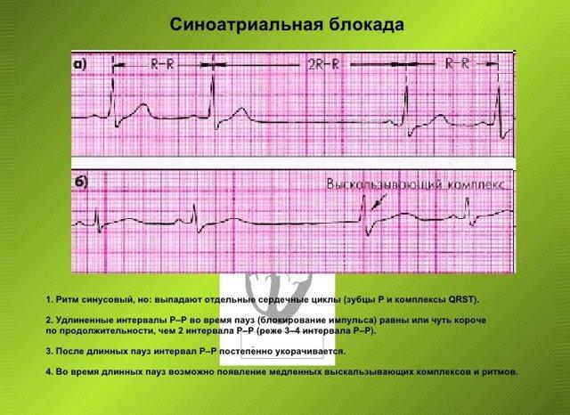 Синусовый ритм норма — сердце