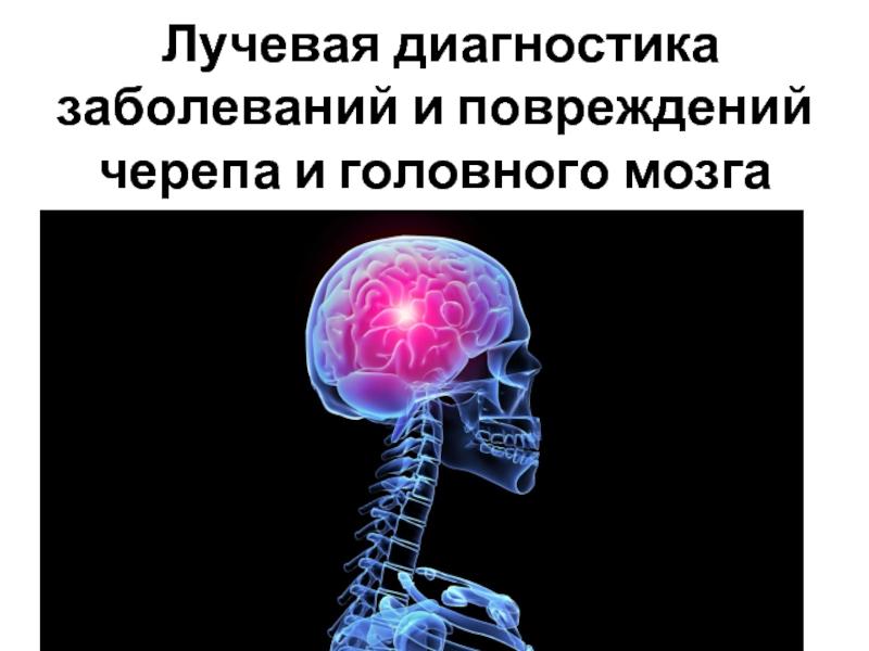 Как делают кт головного мозга, подготовка и противопоказания, контраст