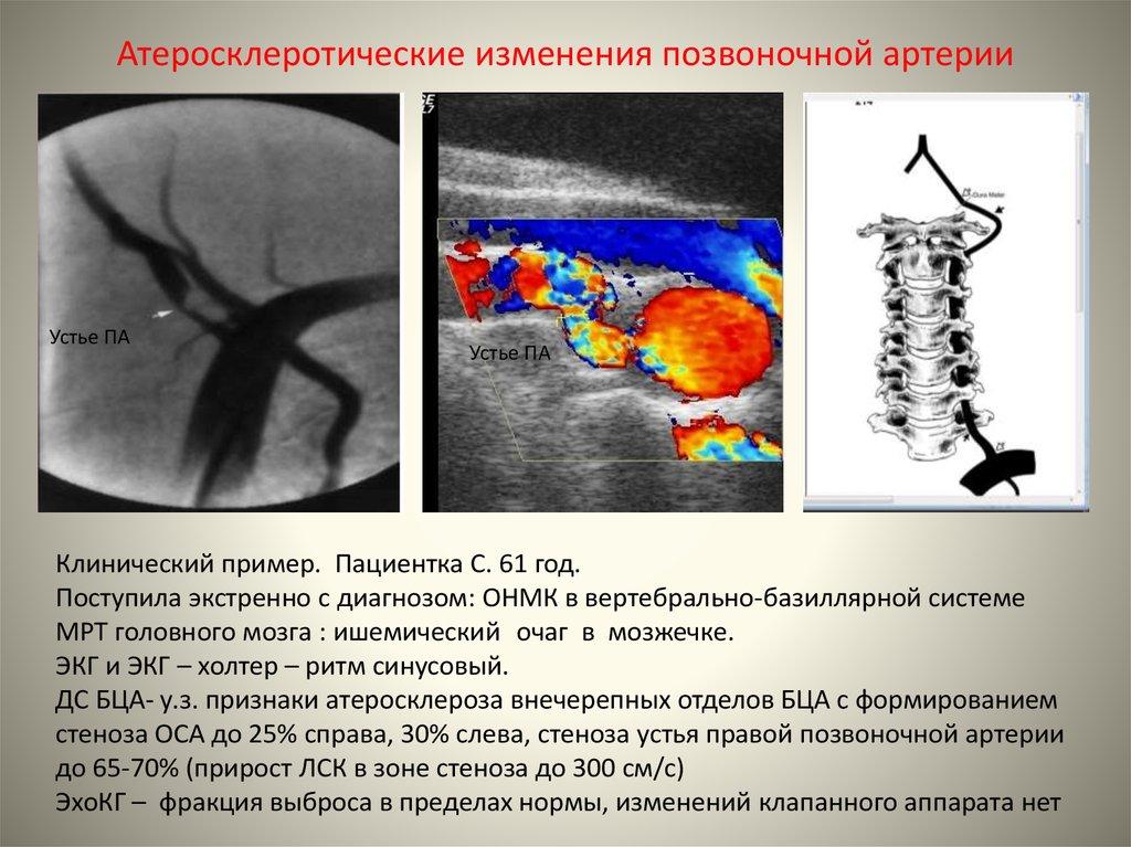 Дуплексное сканирование брахиоцефальных артерий что это такое