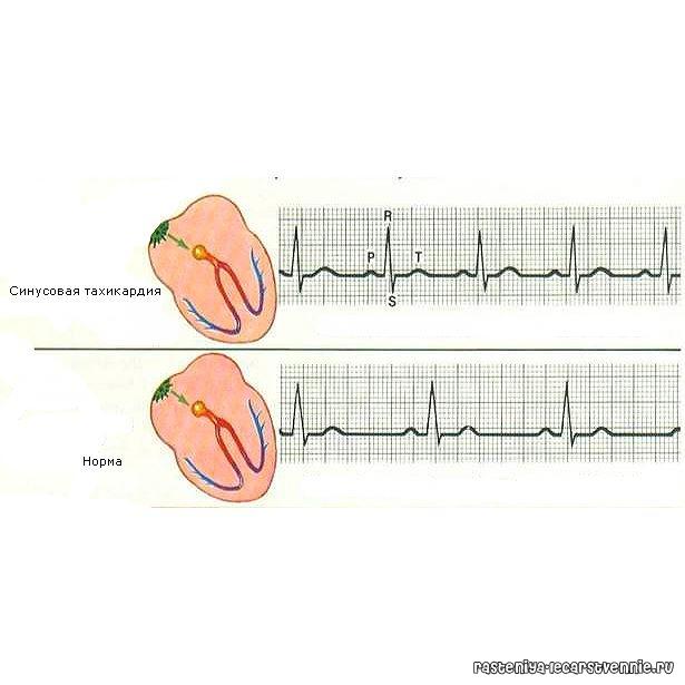 Все факты о тахикардии - что это такое и как лечить сердце