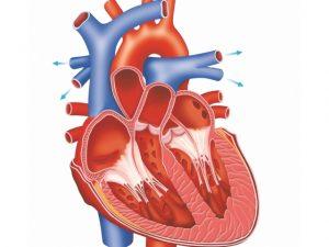 Аортокоронарное шунтирование сосудов сердца (акш) или «операция президентов»
