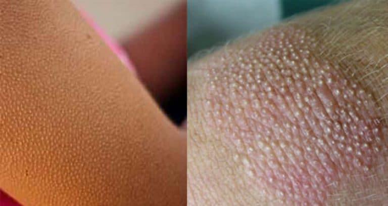 Гиперкератоз кожи - фолликулярный, шейки матки, лица, стоп их лечения