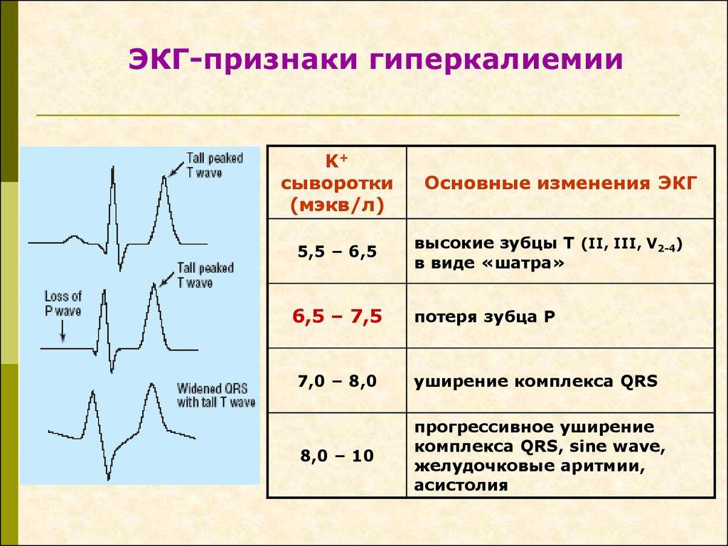 Гиперкалиемия - симптомы, причины, лечение