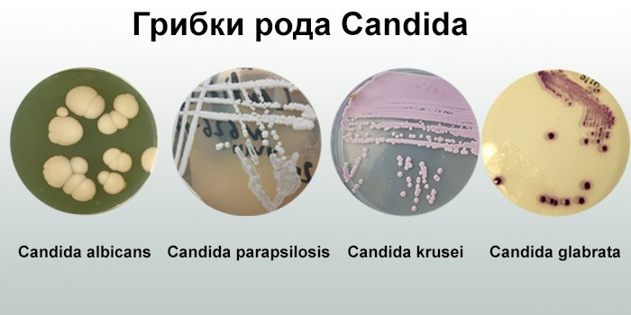 Candida albicans - что это такое и как лечить | медицинская энциклопедия