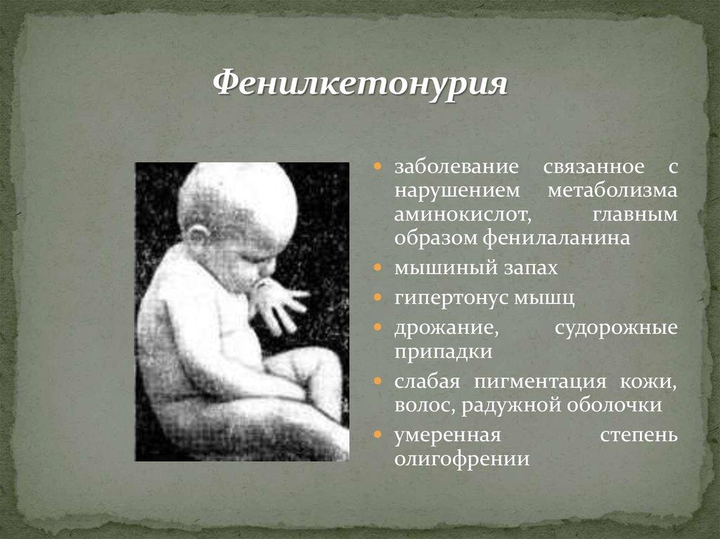 Фенилкетонурия (фку). причины, симптомы, диагностика и лечение фенилкетонурии. лечение фенилкетонурии: диета и питание.