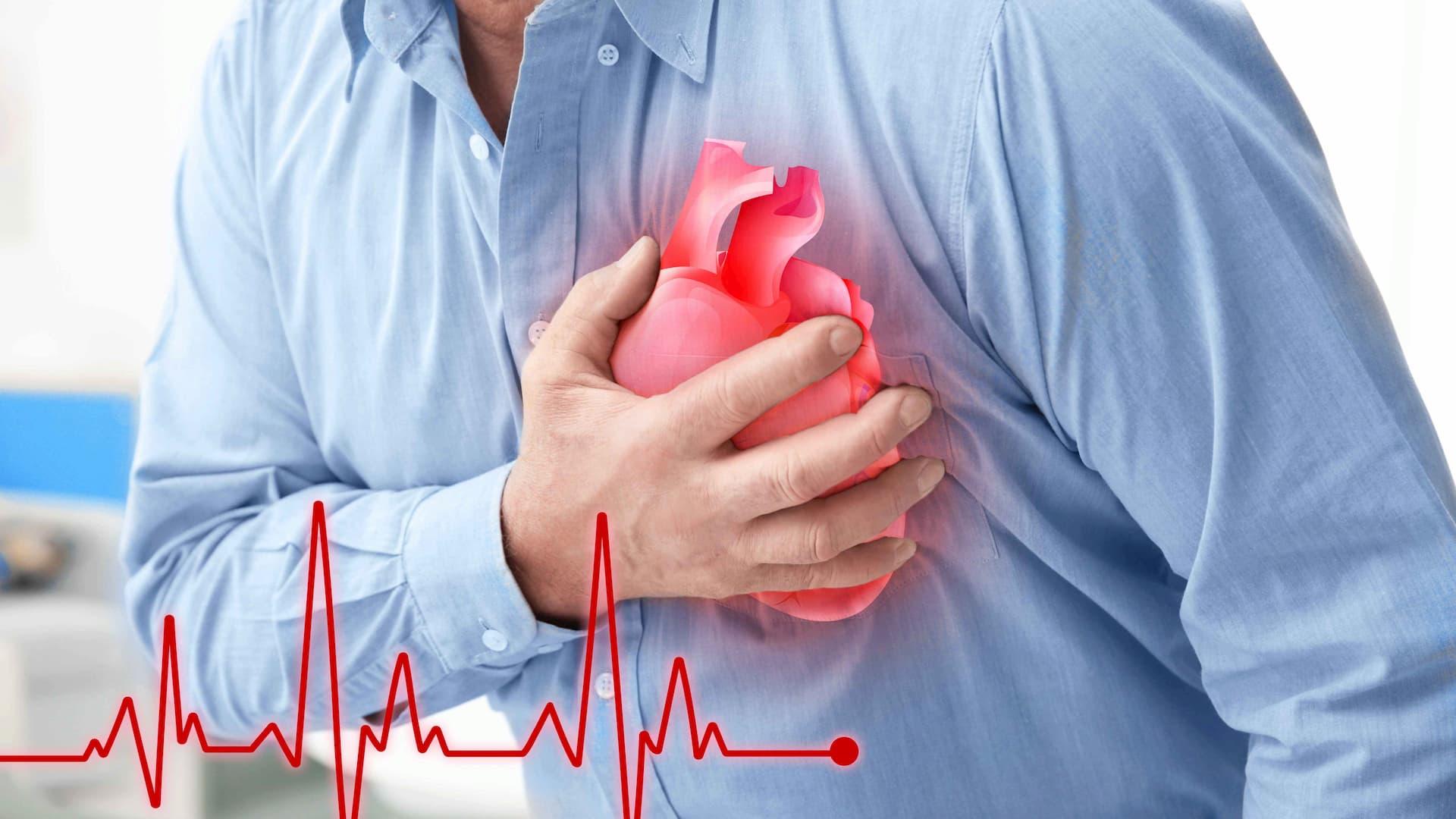 Инфаркт миокарда: что это такое, первые симптомы, причины и лечение
