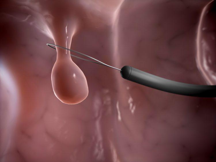 Лечение полипов эндометрия в матке