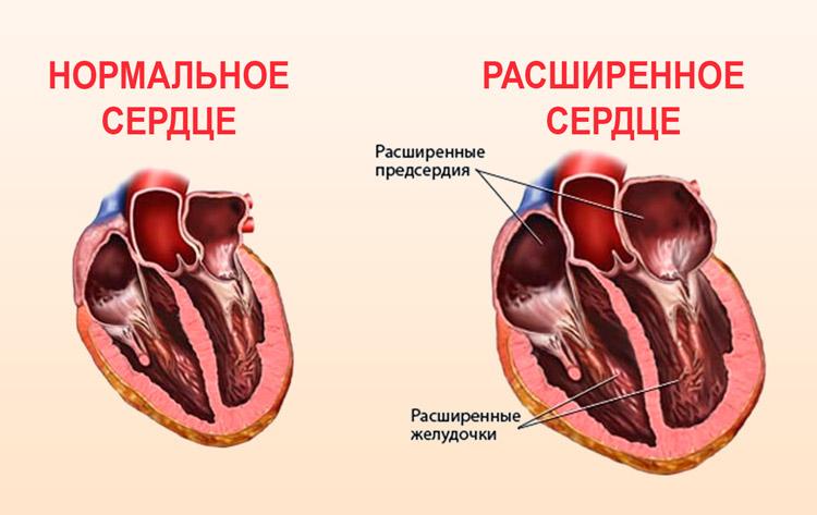 Кардиомегалия: что это такое, симптомы, как лечить, сколько живут, прогноз | osostavekrovi.com