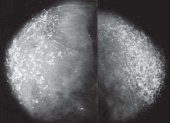 Кальцинаты в молочных железах: причины, лечение – что такое единичные и множественные кальцинаты — медицинский женский центр в москве