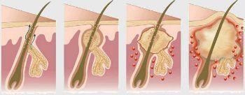 Сучье вымя или гидраденит: что это такое, лечение