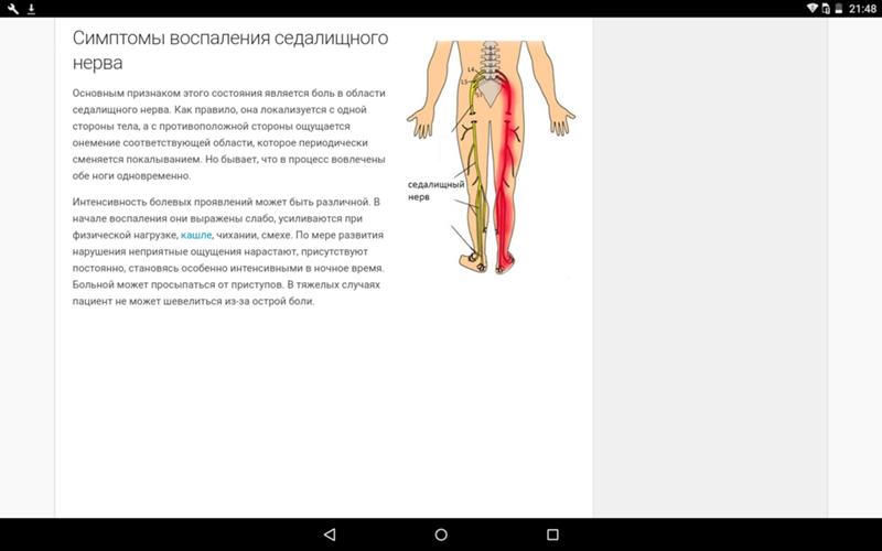 Ишиас: симптомы и лечение в домашних условиях