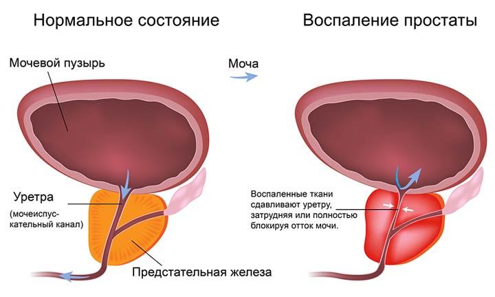 Что такое простата у мужчин и как она проявляется