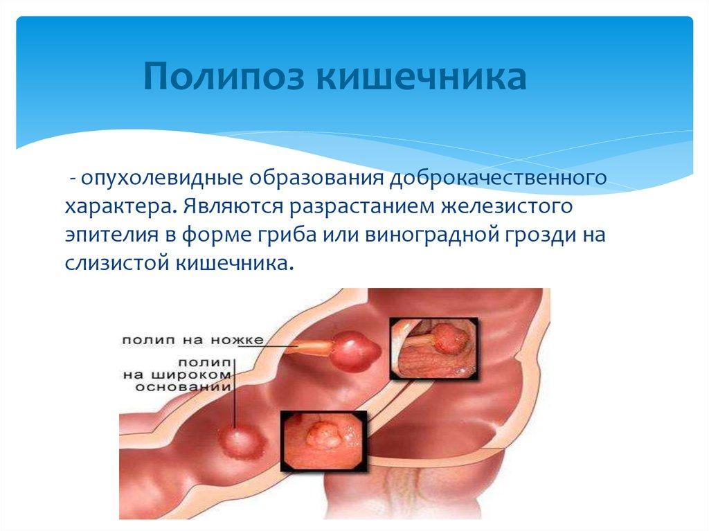 Полипы во рту: виды полипов на слизистой, лечение и удаление