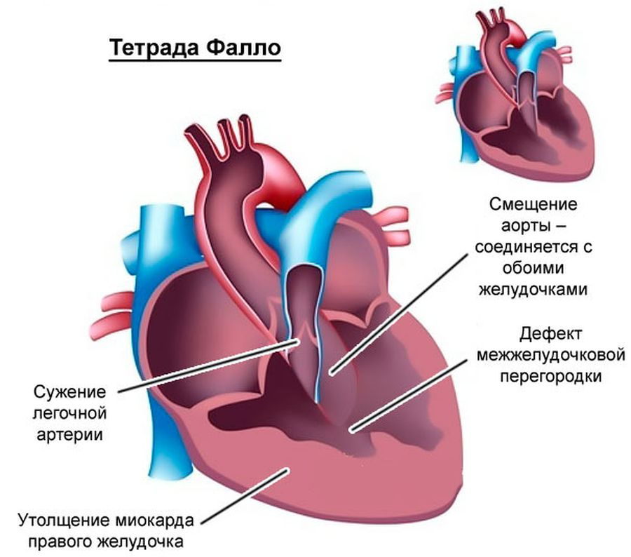 Что такое врожденные и приобретенные пороки сердца: первые признаки, что делать?