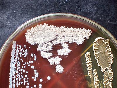 Краткая история развития микробиологии: ученые, открытия, достижения. роль микробиологии в жизни человека