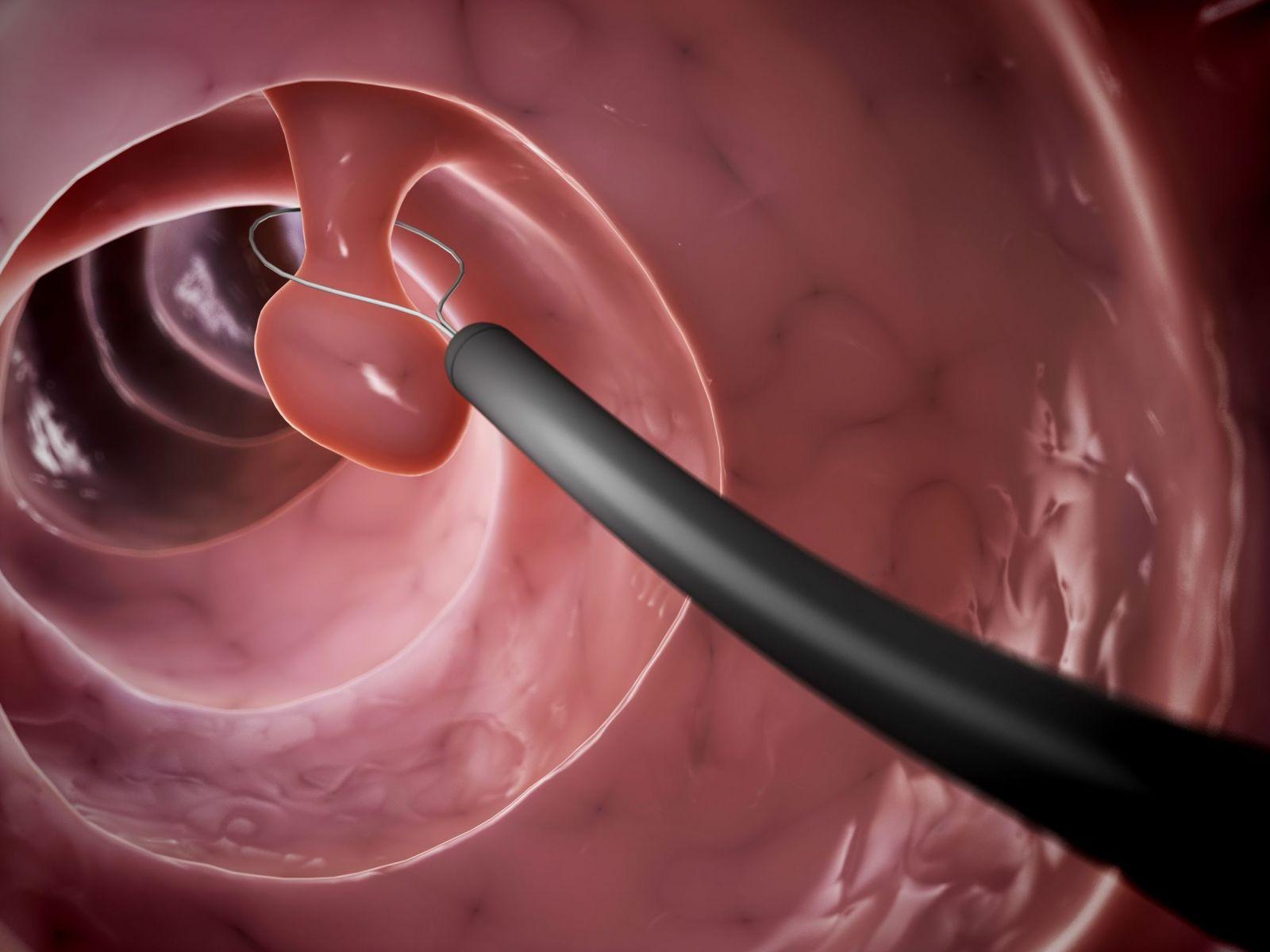 Полипы в матке: виды, психосоматика, а также чем опасен полипоз эндометрия
