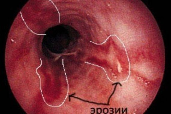 Катаральный гастрит: как лечить антральный рефлюкс гастрит