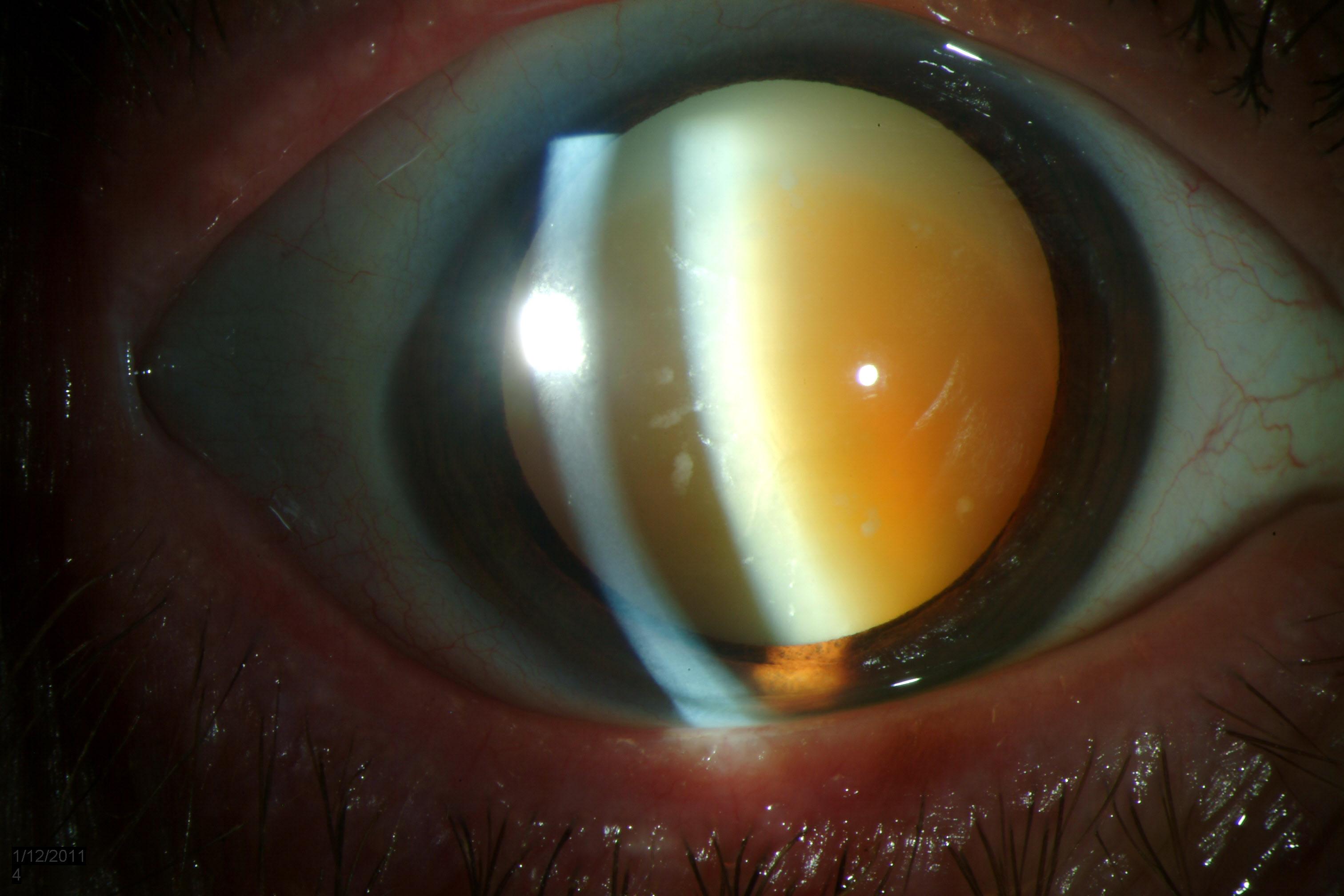 Катаракта глаза – что это такое, почему возникает, и как лечить болезнь?