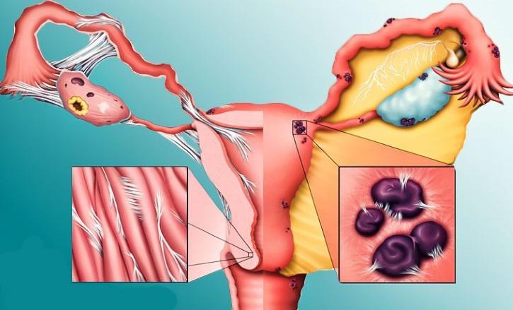 Причины эндометриоза у женщин— симптомы, лечение, профилактика
