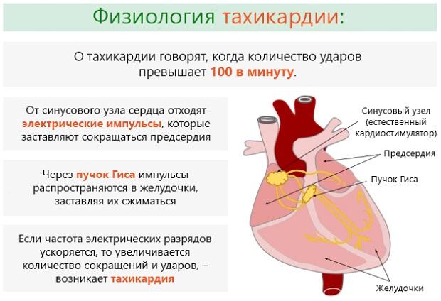 Тахикардия - что это такое и как лечить, чем опасно заболевание, его причины и симптомы