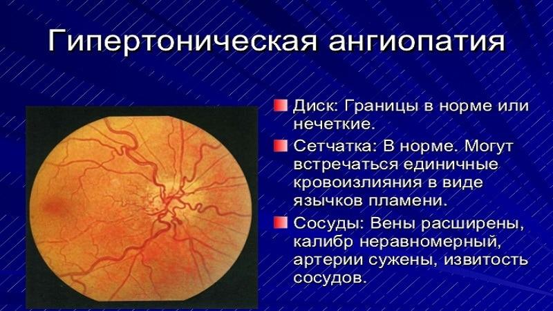 Гипертоническая ангиопатия сетчатки - симптомы и лечение