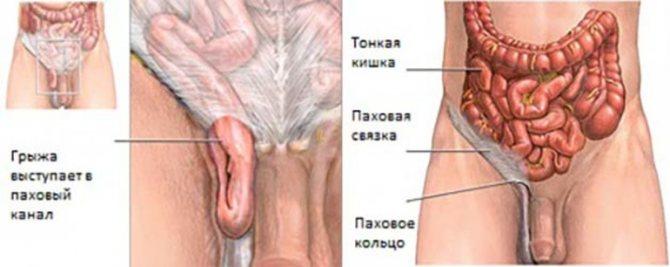 Топографическая анатомия паховой области. паховый канал и паховый промежуток, топография сосудов и нервов. практическое значение.