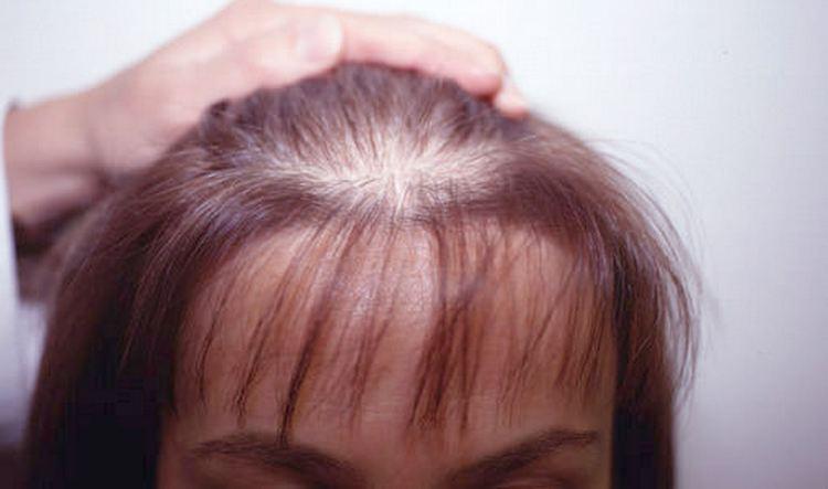 Алопеция: что это такое, причины, лечение выпадения волос