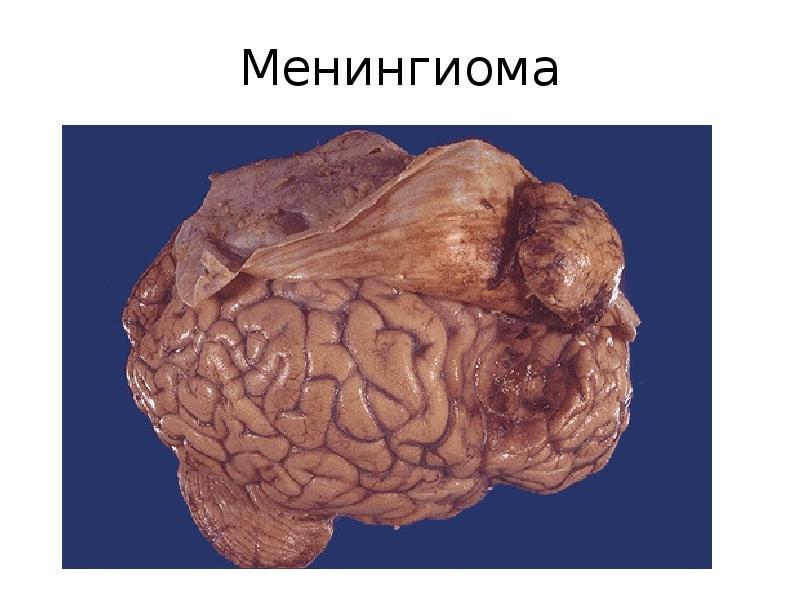 Менингиома