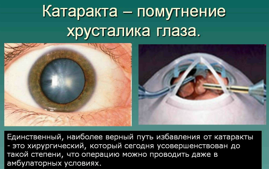 Какой хрусталик лучше при катаракте — импортный или отечественный