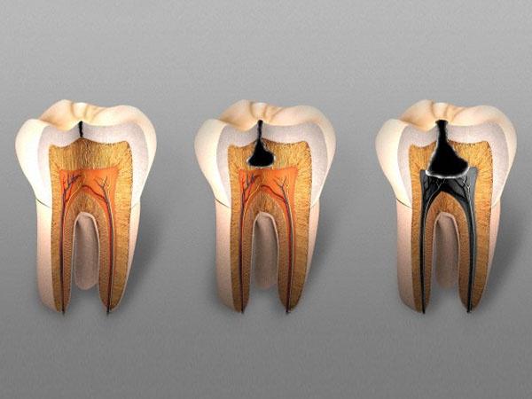 Пульпит зуба – что это такое? симптомы и лечение