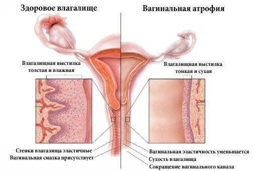 Кольпит. причины, симптомы и признаки, диагностика и лечение болезни :: polismed.com